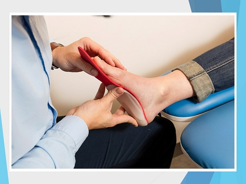 Evaluation if your foot before custom made orthotics